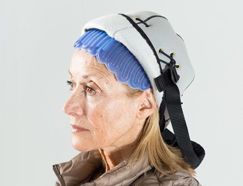 Touca inglesa reduz queda de cabelo em pacientes com câncer